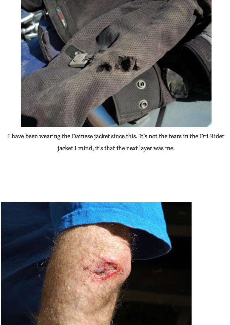 Damaged motorbike jacket after fall